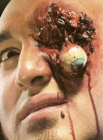 FX Latexwunde ausgerissenes Auge